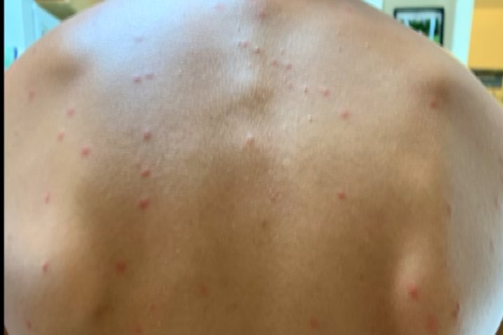 Swimmers Itch Popping Up Around Northern Michigan - 9 & 10 News