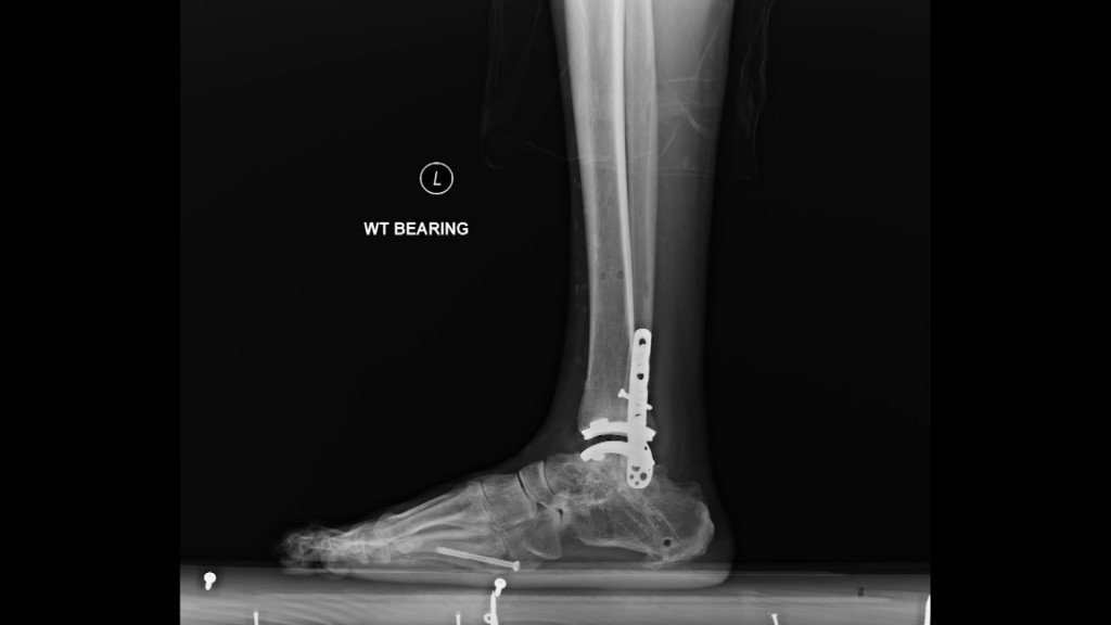 Hl Total Ankle Replacement Pkg 5.transfer