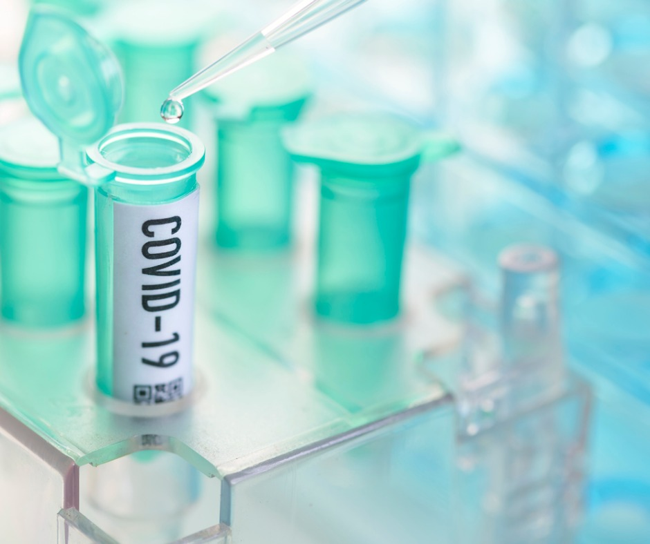 Corona Virus Vial With Pipette In Laboratory Picture Id1206578214