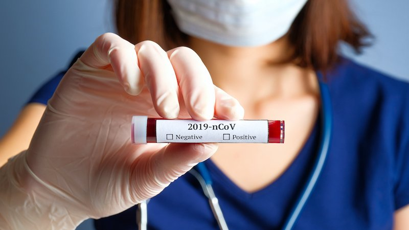 Nurse Holding Test Tube With Blood For 2019 Ncov Analyzing. Novel Chinese Coronavirus Blood Test Concept