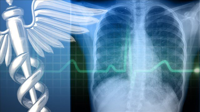 Tuberculosis Outbreak Associated With Mankato University ...