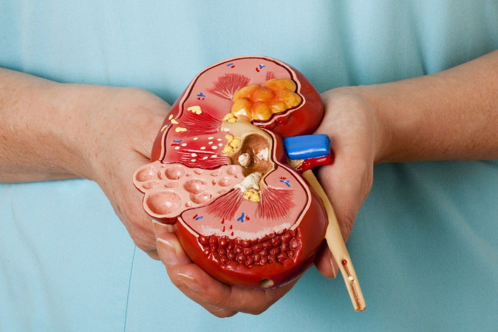Diseased Kidney