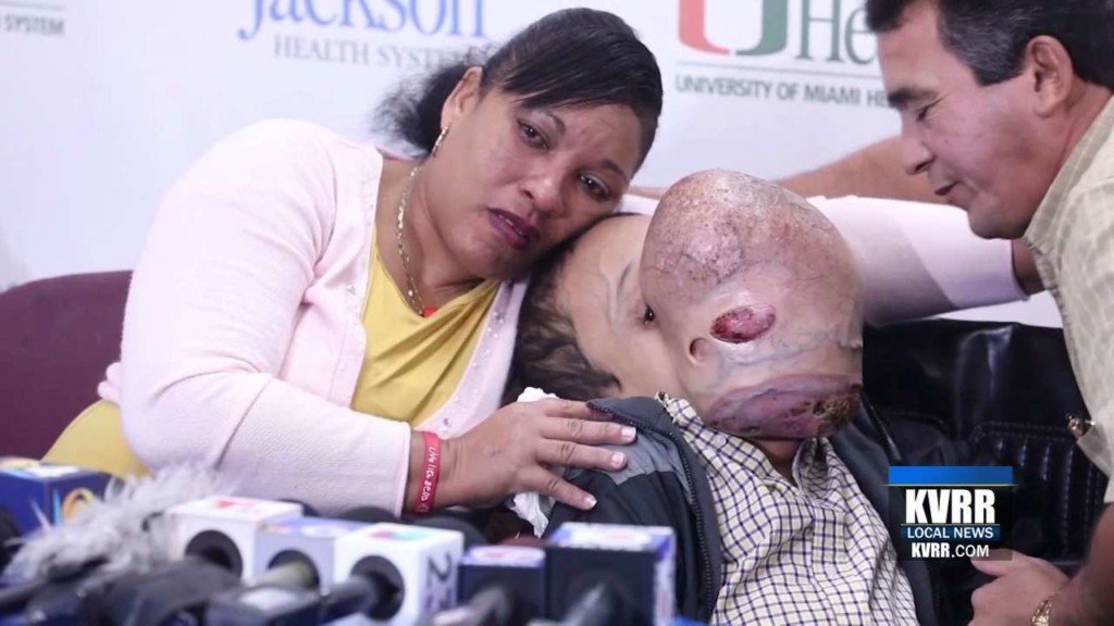 Cuban teen dies after 10-pound tumor removed from face