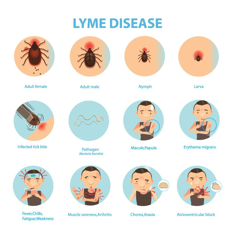 causes essays on lyme disease Hastings center research scholar carolyn p neuhaus participated in a panel  discussion on martha's vineyard on july 12 to discuss a proposal.